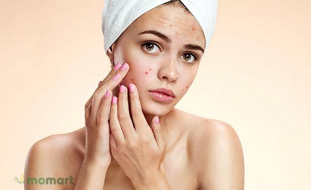 Cách nặn mụn đúng cách tránh thâm sẹo cho làn da của bạn