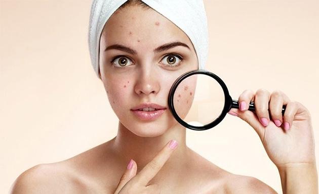 Dị ứng mỹ phẩm khiến da bạn bị kích ứng, mỏng và xuất hiện nhiều mụn hơn