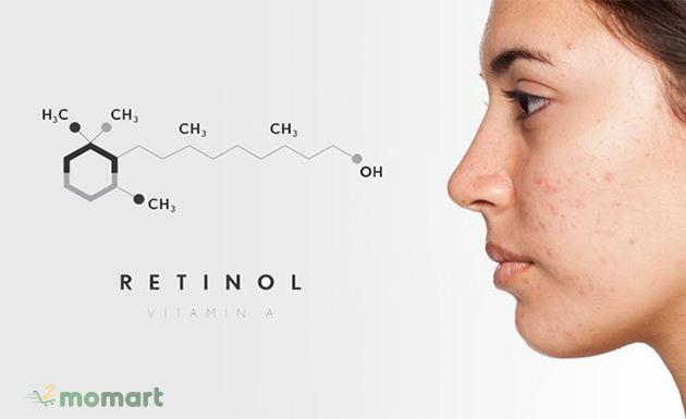 Cách dùng Retinol chống lão hóa