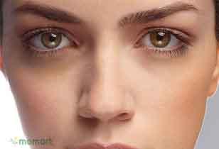 Kem trị thâm mắt an toàn và hiệu quả nhất hiện nay